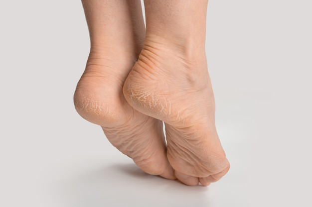 DRY SKIN ON FOOTS